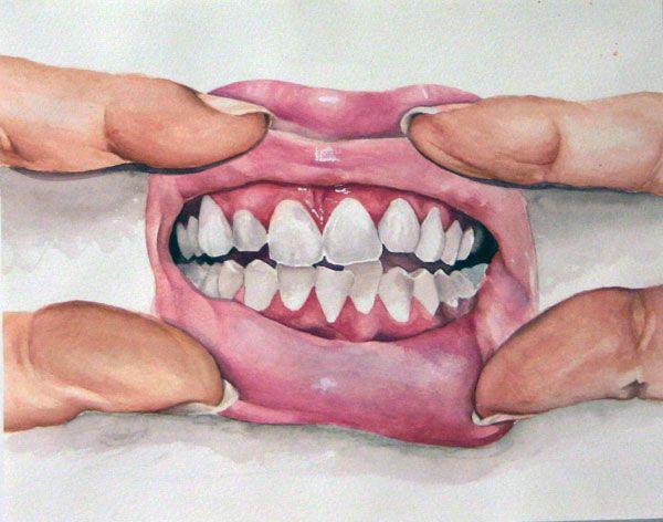 hannahscott acrilico de boca enseñando los dientes
